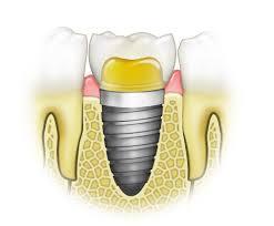 implantaciya-stom11